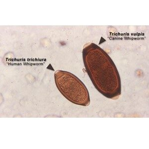 Whipworm Trichuris Vulpis